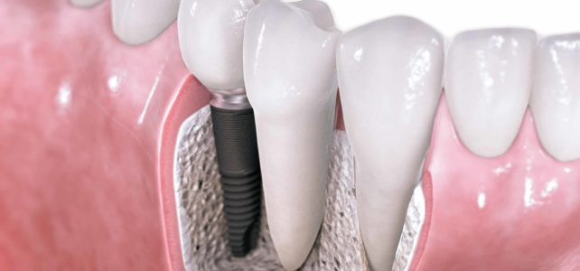 Importance of Implant Dental Care