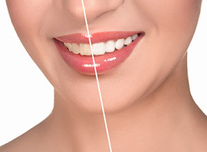 Interested in teeth whitening?