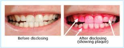 Dental Disclosing Solution